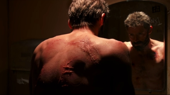 logan-wolverine-scars